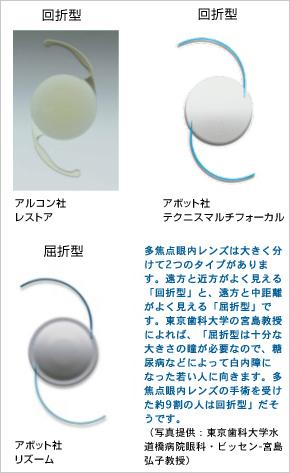 多 焦点 眼 内 レンズ を 用 いた 水晶体 再建 術